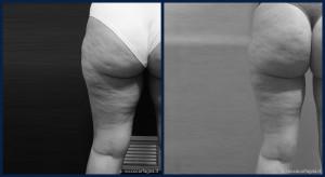 pre-post-liposuzione-002