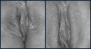 ringiovanimento-vaginale-002