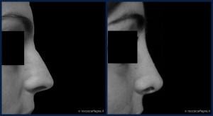 pre-post-rinoplastica-001