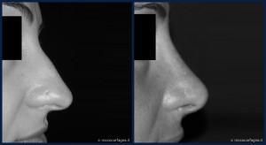 pre-post-rinoplastica-003