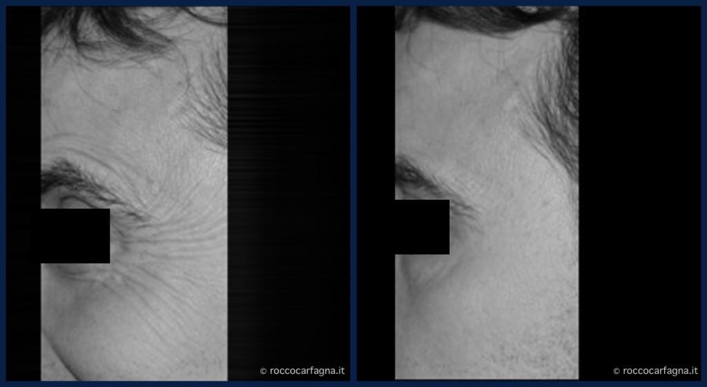 pre-post-botox-4