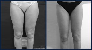 pre-post-liposuzione-001