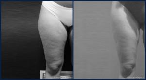 pre-post-liposuzione-003