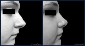 pre-post-rinoplastica-005